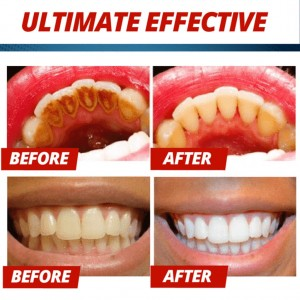 IMAGES Fruit Toothpaste Stain Removal Whitening Toothpaste 200g (A32)